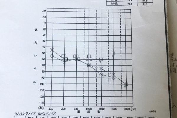 難聴の聴力検査の結果